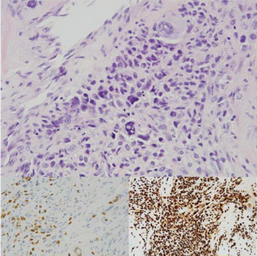 Anaplastic rhabdomyosarcoma, a type of pediatric sarcoma, in TP53 germline mutation carrier.